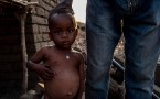 South Sudan children suffering from malnutrition